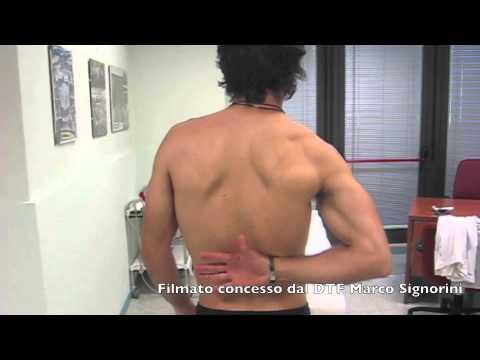 Sintomi osteosarcoma dellanca