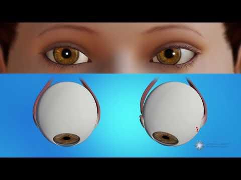 A látás fontossága az emberek számára