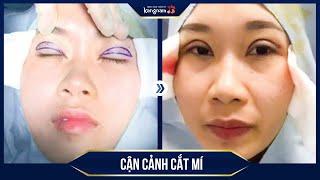 CẬN CẢNH quá trình cắt mí mắt Plasma tại Kangnam