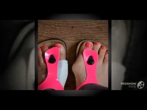 Тейпирование большого пальца ноги при вальгусной деформации