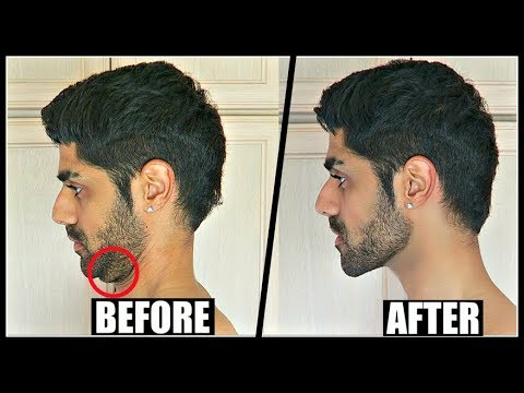 How To Get Rid Of DOUBLE CHIN In 2 Days | Reduce Face Fat