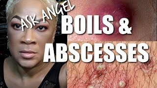 HOME REMEDIES FOR BOILS AND ABSCESSES