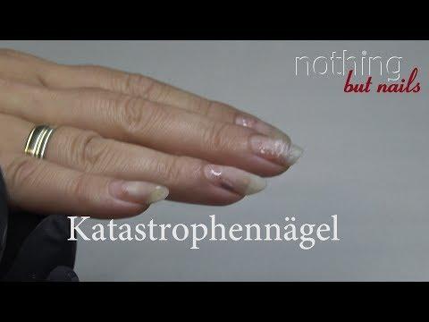 Das ergebnisreiche Mittel von gribka der Nägel auf den Beinen die Volkseigenen
