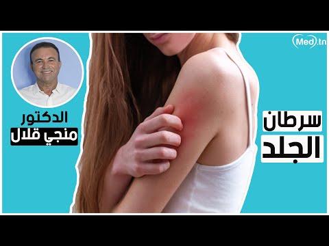 Dr Mongi KALLEL Dermatologue