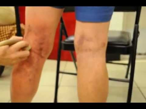 Ihtiolovaya ครีม thrombophlebitis