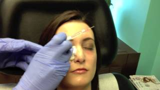 Dark Under Eye Circle Tear Trough Injections Chevy Chase Maryland