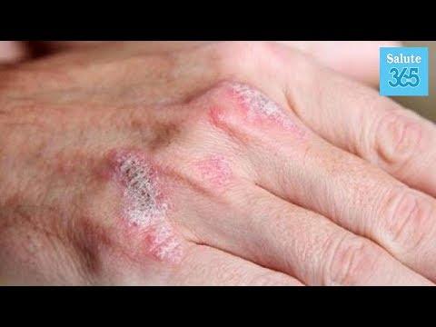 Assorbente per bambini a dermatite atopic