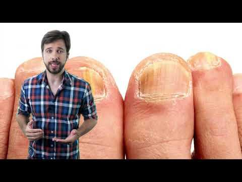 Micose de unha: Causas, sintomas e tratamento