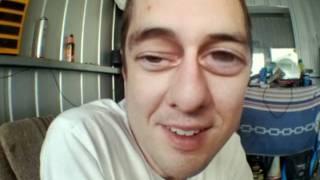 Mongoloid eyes