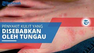 Kudis, Penyakit Kulit yang Disebabkan Infeksi Tungau atau Kutu, Ini Gejala dan Cara Mengobatinya