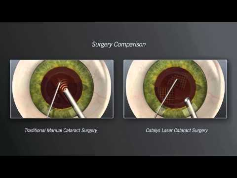 Cataract Surgeon in Michigan