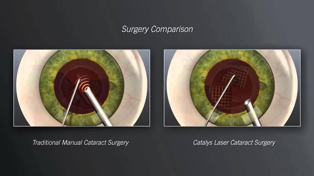 Cataract Surgery Detroit