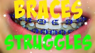 Braces Struggles!