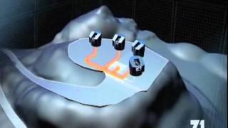 Dokumentárny film Technológia - Megaopravy: Ďalekohľad