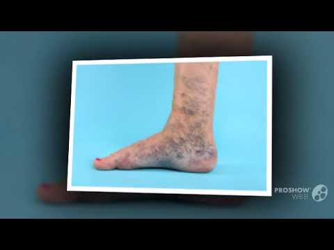 покраснение на ноге при варикозе