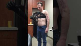 Targeted Muscle Reinnervation Patient (Video 2)