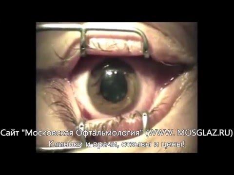 Жданов в.г лекция о естественном восстановлении зрения