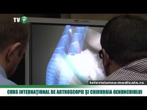 Condroprotectoare intraarticulare pentru artroza articulației genunchiului
