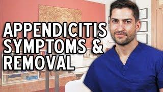 Appendicitis Symptoms, Signs & Removal