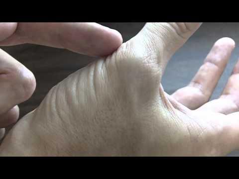 Les veines ballonnées sur les pinceaux des mains et les pieds