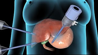 Cholecystectomy | Gallbladder Removal Surgery | Nucleus Health