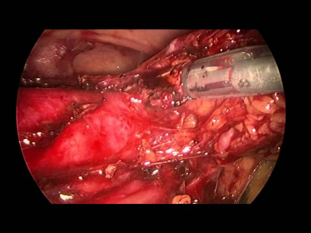 Retroperitoneal Aortic Lymphdenectomy