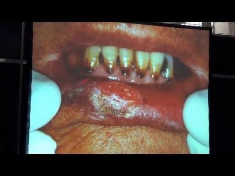Papilloma like lesions