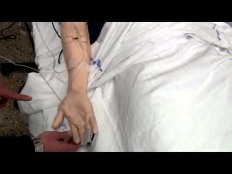 Sulla secrezione insulinica colpisce