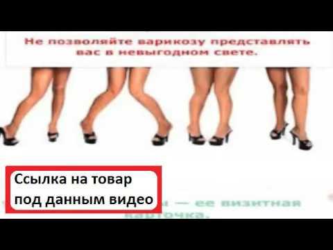 варикоз пятна на ногах