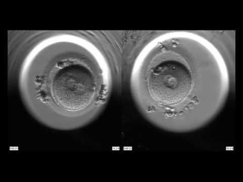 Nice Embryo    Medicana Konya Tüp Bebek Merkezi̇