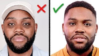 Remove DARK CIRCLES Under Your Eyes (How I Did It) Mens Skin Care