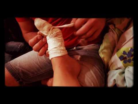 Wpadać na palcu wskazującym leczenia