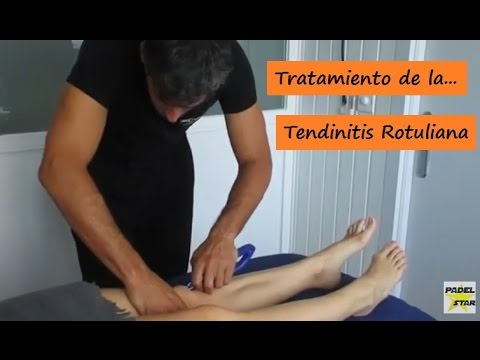 Capacitación para la hernia de columna torácica