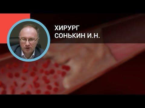 Хирург Сонькин И.Н.: Тромбозы поверхностных и глубоких вен