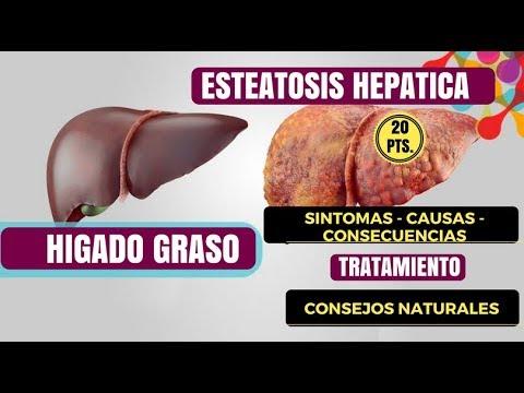 Sartana crisis hipertensiva