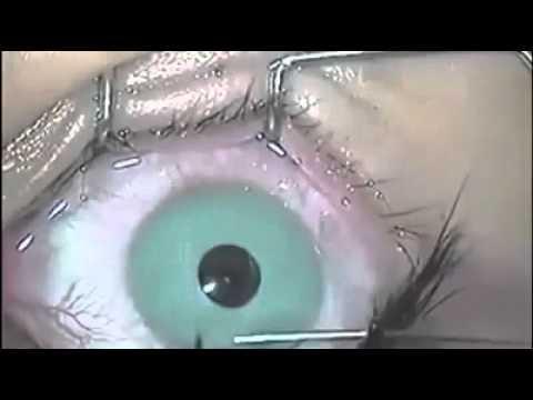 Кот чего мешки под глазами
