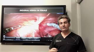 What is the importance of groin hernia in female by Dr. Iraniha