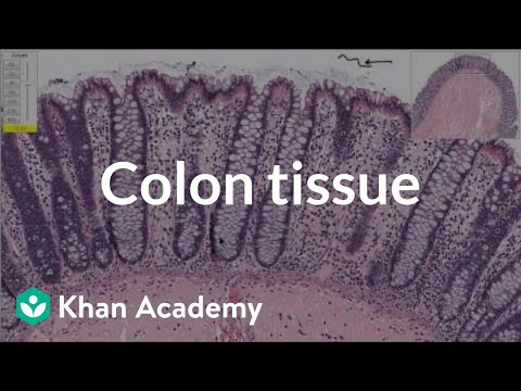 A thumbnail for: Colon Disease