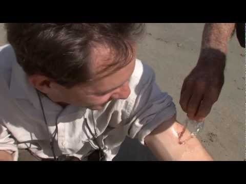 Infecție parazitară cu papilom