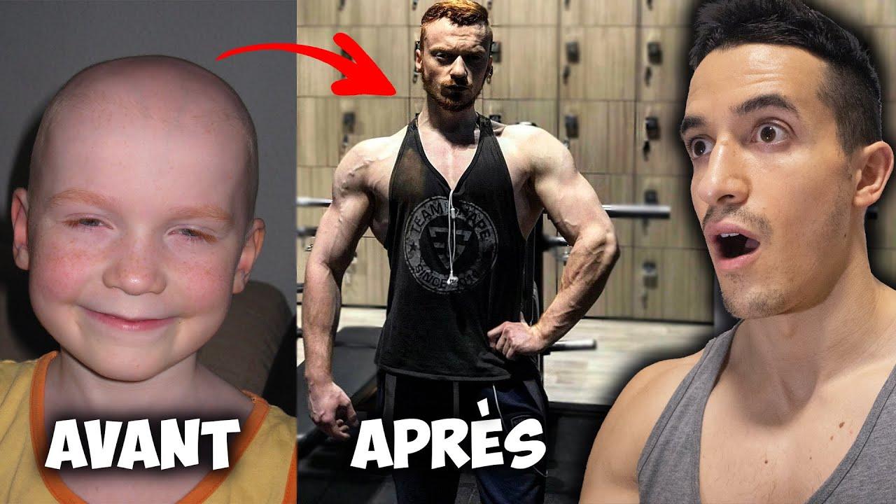 Il bat le cancer et gagne 30kg de muscle ! (transformations incroyables)