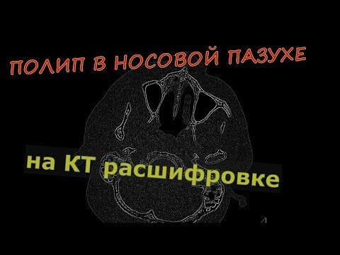 Krónikus prosztatitis esetén