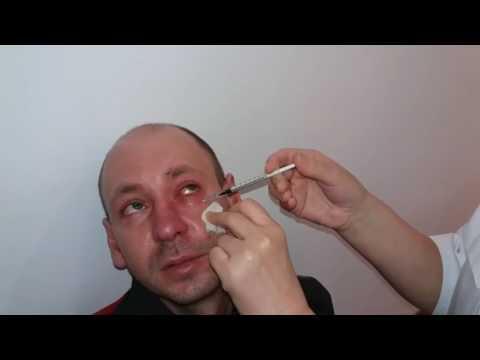 Как снять отек и красноту глаз