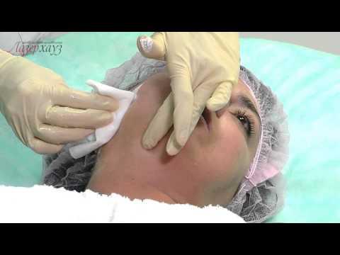 Nano-эпиляция в 'Лазерхауз', эпиляция для светлых волос, лазерная эпиляция Киев