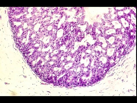 Human papilloma virus protection