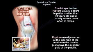 Quadriceps Tendon Rupture  - Everything You Need To Know - Dr. Nabil Ebraheim