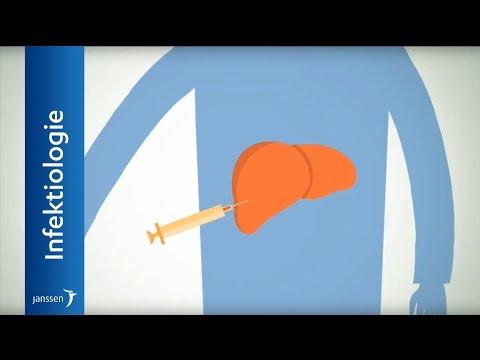 Arthrose des Kniegelenks 3 Grad Betrieb Bewertungen