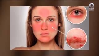 Diálogos en confianza (Salud) - Dermatología cosmética