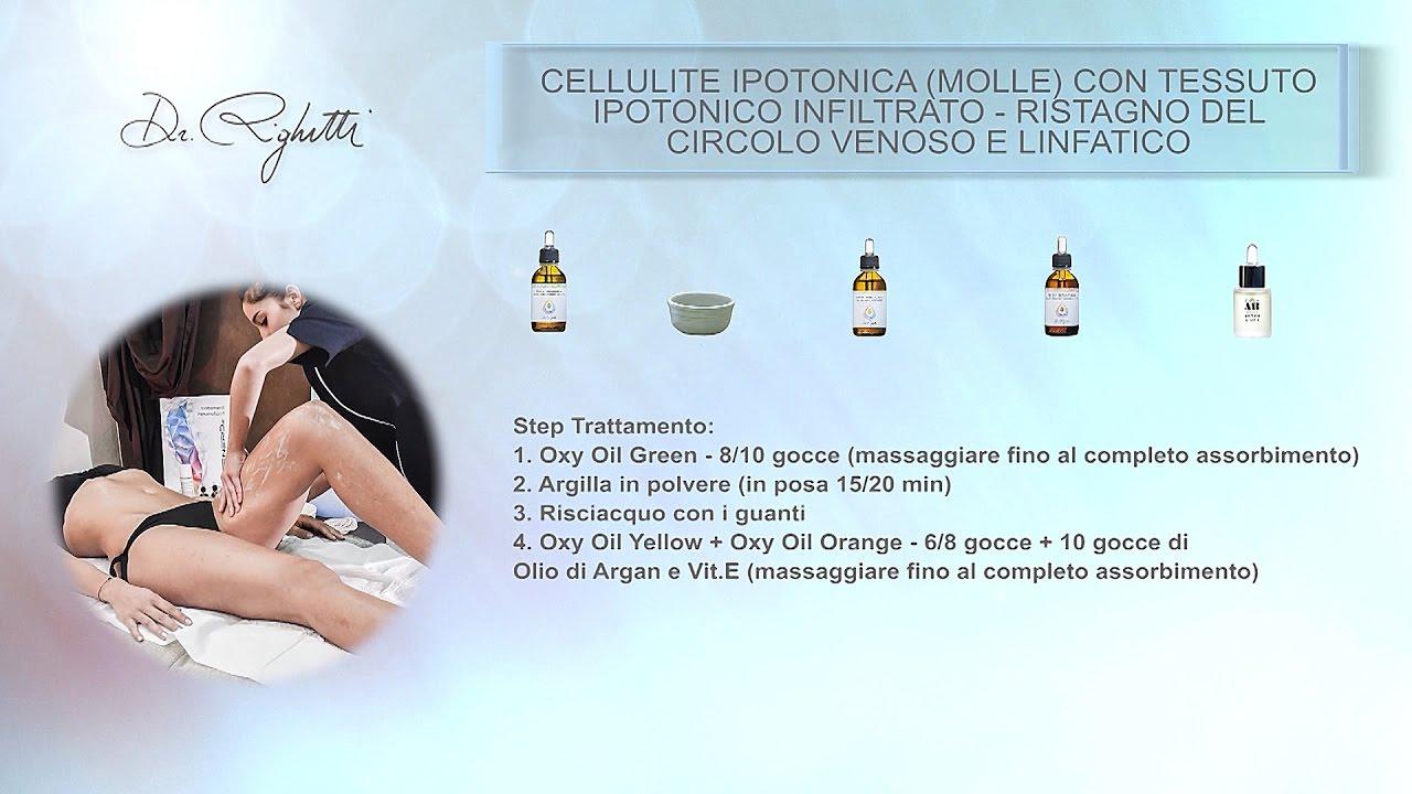 Cellulite Ipotonica