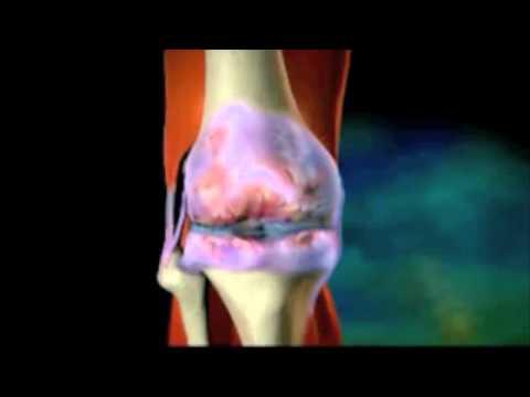 Болезни суставов, и их лечение