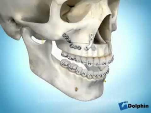 Trattamento Volzhsky di ernia spinale